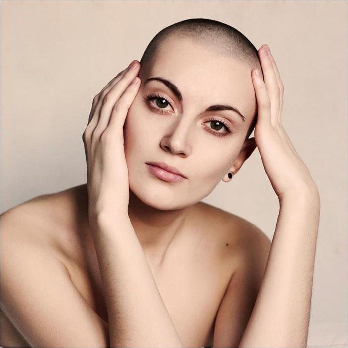 Meet Bald-Headed Singles